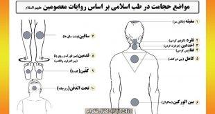 مواضع حجامت در طب اسلامی