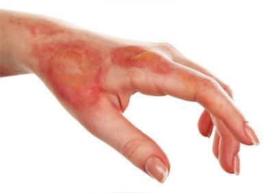 درمان سوختگی و لکه سوختگی در طب اسلامی
