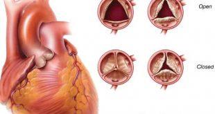 درمان تنگی سوراخ دریچه قلب