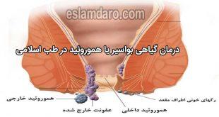 درمان بواسیر هموروئید نر و ماده