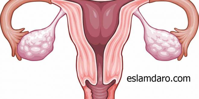 درمان گیاهی ضعف تخمدان