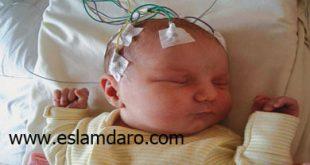 درمان گیاهی تشنج جنین و نوزاد در طب اسلامی