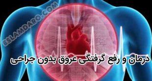 درمان و رفع گرفتگی عروق در طب اسلامی