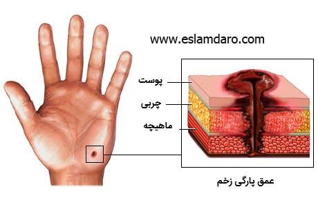 درمان انواع زخمها به روش ساده و طبیعی