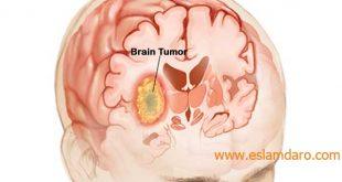 درمان تومور مغزی در طب اسلامی