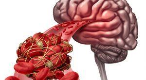 درمان لخته خون در مغز بصورت گیاهی و موثر