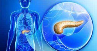 درمان دیابت و پانکراس یا لوزالمعده