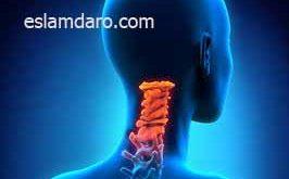 درمان دیستونی گردن (لرزش سر)