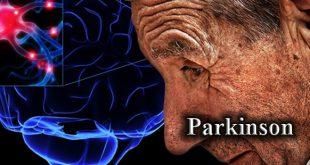 درمان لرزش شدید بدن/ پارکینسون