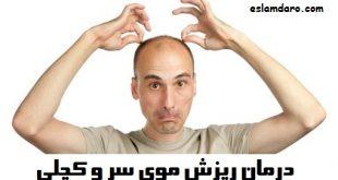 درمان ریزش موی سر و کچلی