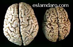 درمان کوچک شدن مغز / آتروفی مغزی