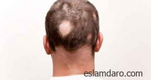 درمان ریزش سکه ای موی سر