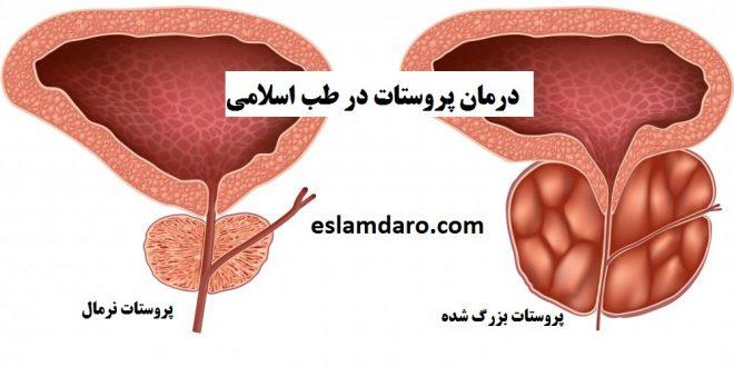 درمان پروستات بطور طبیعی و گیاهی