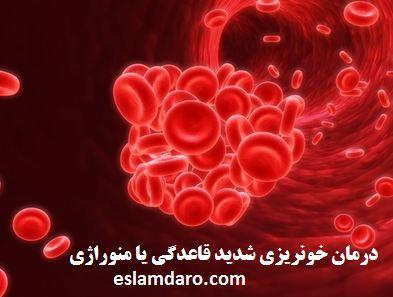 درمان خونریزی شدید قاعدگی یا منوراژی