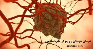 درمان سرطانها و ورمها با دعا