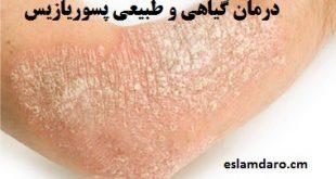 درمان گیاهی و طبیعی پسوریازیس