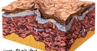 درمان پژمردگی پوست
