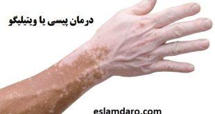 درمان پیسی یا ویتیلیگو