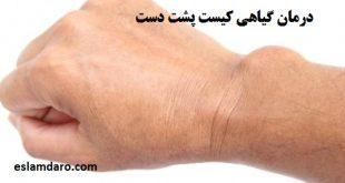 درمان طبیعی کیست مچ دست
