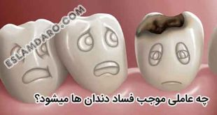 عوامل فساد دندان