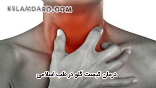 درمان کیست گلو