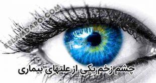 چشم زخم علت برخی بیماری ها و راه درمان آن