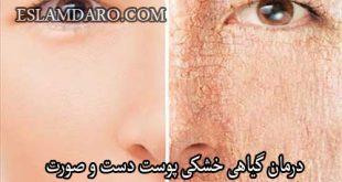 درمان گیاهی خشکی پوست دست و صورت
