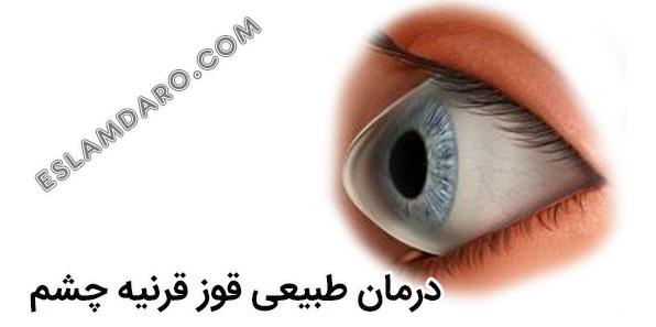 درمان قوز قرنیه چشم