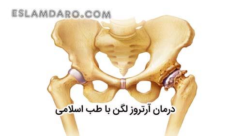 درمان آرتروز لگن با طب اسلامی