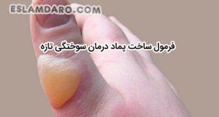 فرمول ساخت پماد جهت درمان سوختگی در طب اسلامی