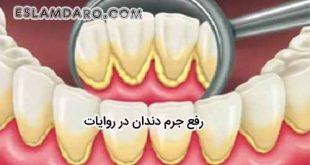 رفع جرم دندان بنا به روایات
