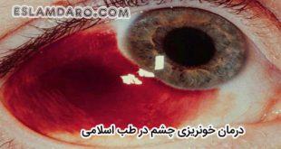 درمان خونریزی چشم در طب اسلامی
