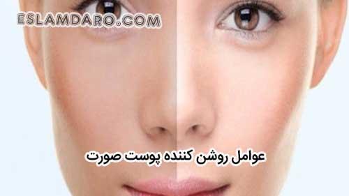 روشن شدن پوست در طب اسلامی
