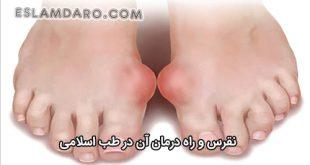 درمان نقرس