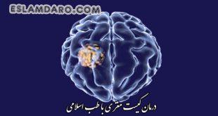 درمان کیست مغز