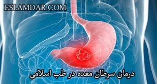 درمان سرطان معده