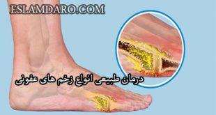 درمان طبیعی انواع زخم های عفونی