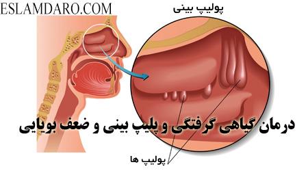 درمان گیاهی گرفتگی و پلیپ بینی و ضعف بویایی